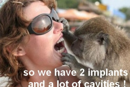 So we have 2 implants and a lot of cavities.